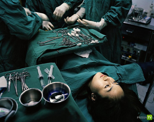 transseksuali-posle-operatsii-meditsina