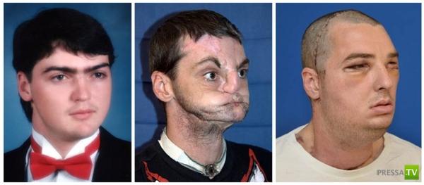 Пересадка лица в США (3 фото)