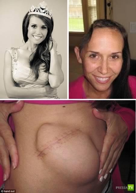 Хирургические операции с пересадкой частей тела в самые неожиданные места (6 фото)