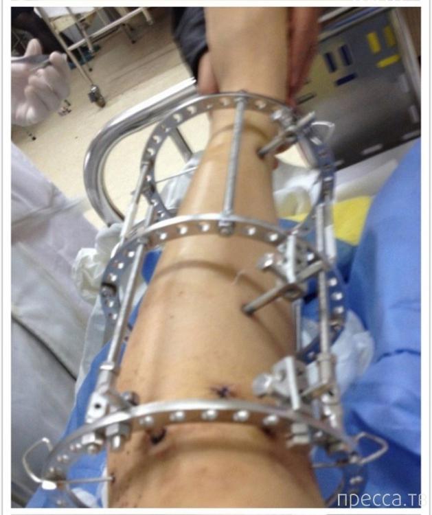 операции на ноги при артрозе