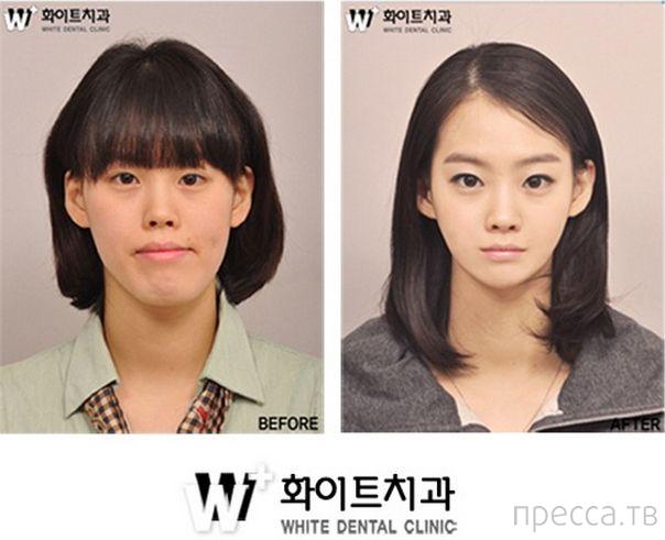 Пластическая хирургия в Южной Корее (17 фото)