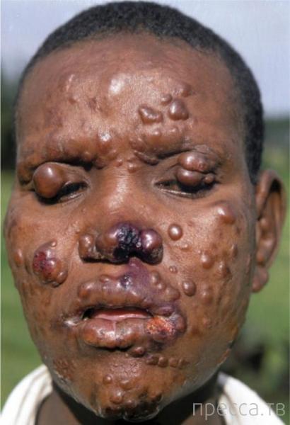 Опасные инфекционные заболевания, которыми можно заразиться во время путешествий (6 фото)