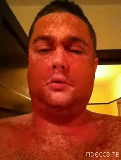 Побывавший на родах мужчина через 24 часа превратился в сплошную язву ... (3 фото)