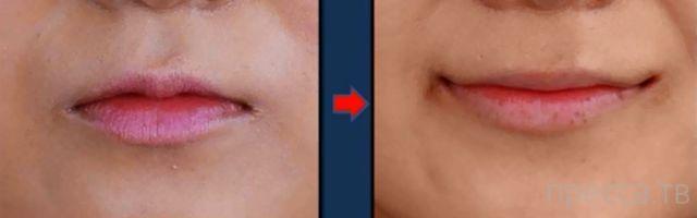"""Вечная улыбка"" от пластических хирургов Южной Кореи (10 фото)"