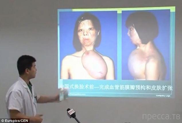 Новое лицо для девушки вырастили на её груди. . Когда жительнице рыбацкой