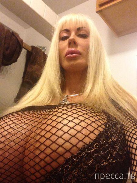 Прооперированная грудь медленно убивает порноактрису (20 фото)