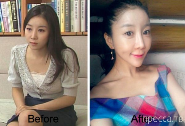 Южнокорейская телеведущая до и после пластической операции (6 фото)