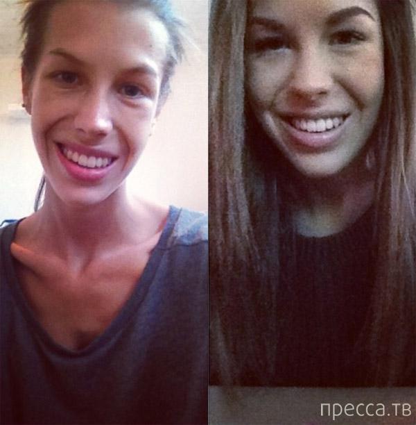 Девушка победила анорексию и стала спортсменкой (7 фото)