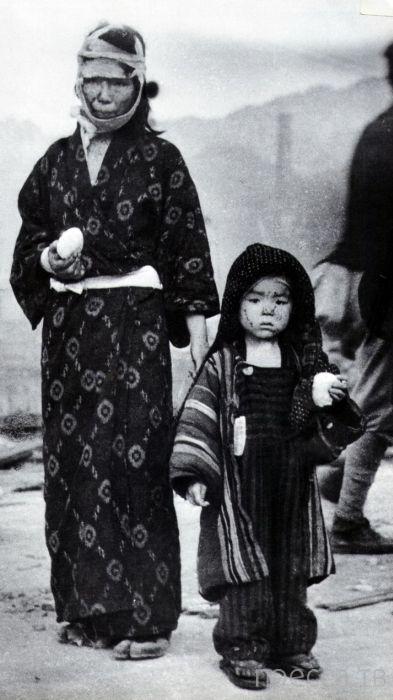 Страшные фотографии Хиросимы и Нагасаки после атомной бомбардировки. Впечатлительным не смотреть! Жесть!!! (23 фото)
