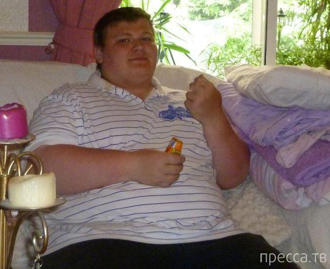 Последствия потери лишнего веса (8 фото)