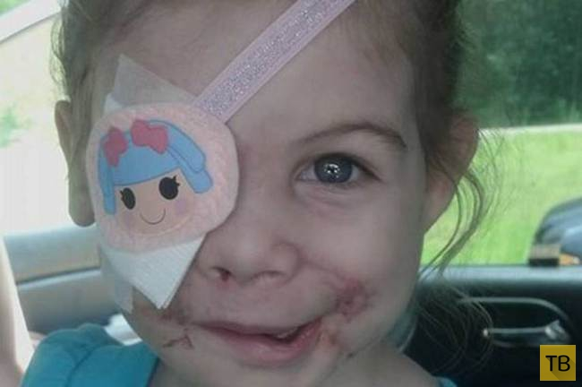 В США выгнали девочку из ресторана KFC из-за шрамов на лице (3 фото)