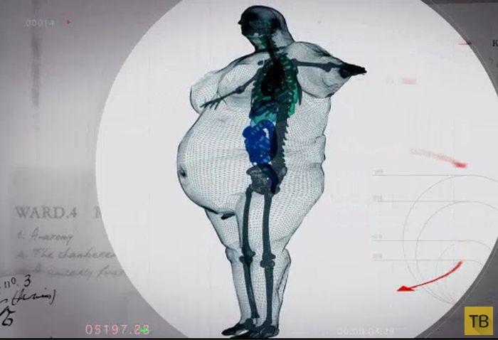 Пугающие рентгеновские снимки тела 400-килограммового мужчины (5 фото)