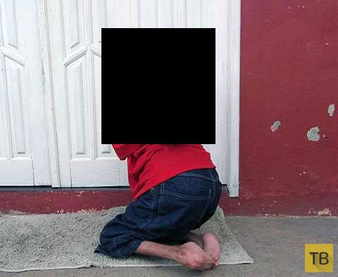 37-летний мужчина с перевернутой головой (6 фото)
