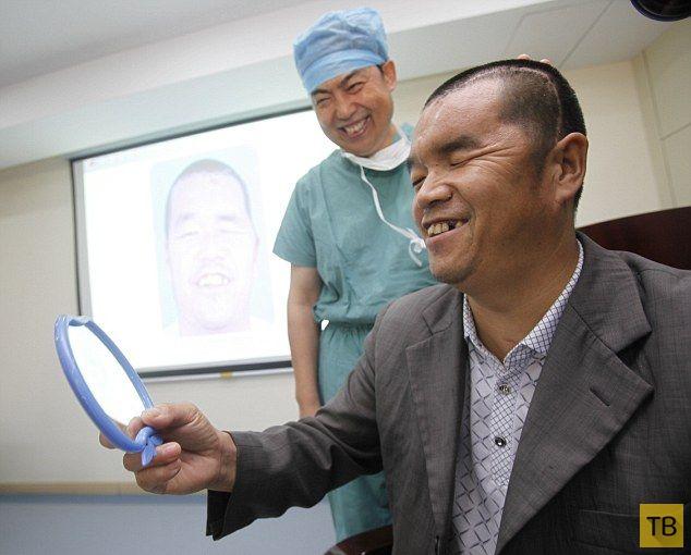Врачи распечатали китайскому фермеру новый череп (5 фото)