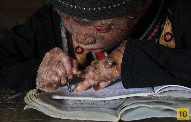 Индонезийский мальчик-змея меняет кожу каждые полтора месяца (7 фото)
