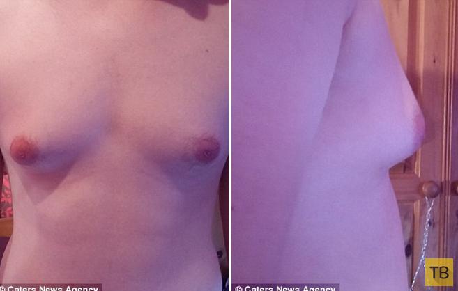 Британский подросток и проблемы с грудью (5 фото)