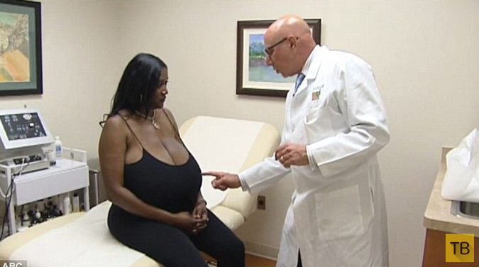 Хирурги четыре часа избавляли женщину от 14-килограммовой груди (6 фото)