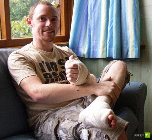 Большой палец ноги пересадили на руку