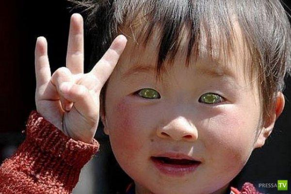 Мальчик с кошачьими глазами (2 фото)