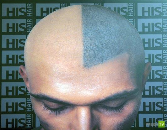 Проблема облысения решена...Британские мужчины теперь экономят на пересадке волос, заменяя это татуировками
