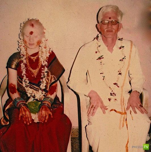 Где живут альбиносы?... Самая большая семья в Индии...