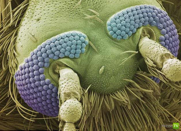 Мир под микроскопом... (22 фото)