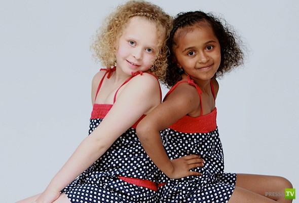 Разноцветным британским близняшкам исполнилось по 7 лет ... ( 4 фото)