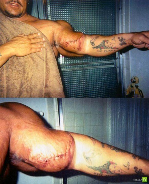 Жертвы синтола ... (35 фото)
