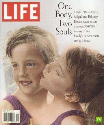 Сиамские близнецы Абигайль Лорейн и Бриттани Ли Хензел (11 фото)