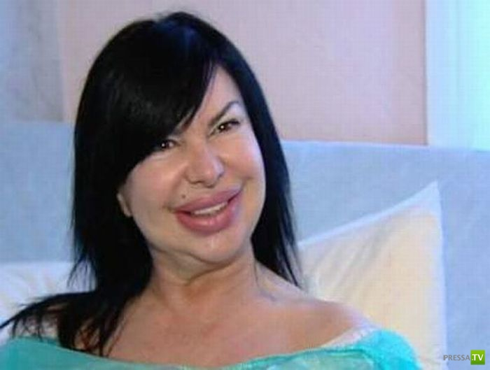 Как пластическая хирургия изменила порноактрису (20 фото)
