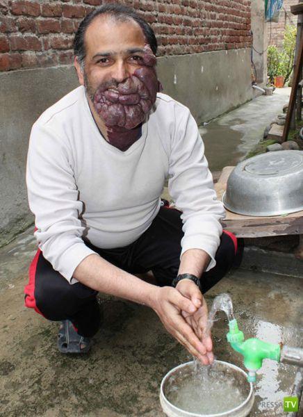 Мухаммед Хусейн со страшным дефектом кожи лица (13 фото)