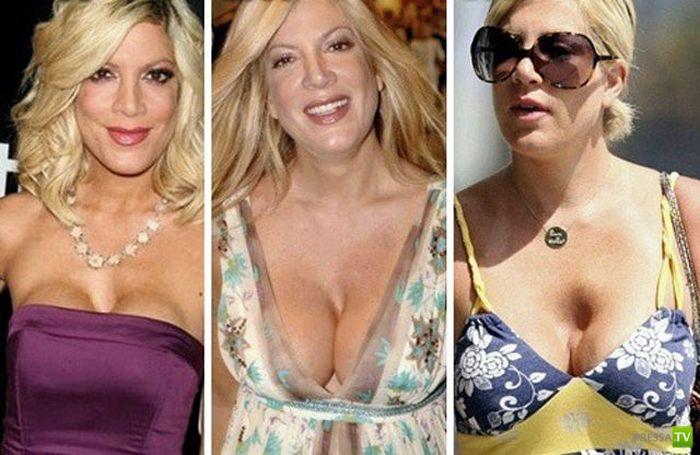 Знаменитости с накаченной грудью (14 фото)