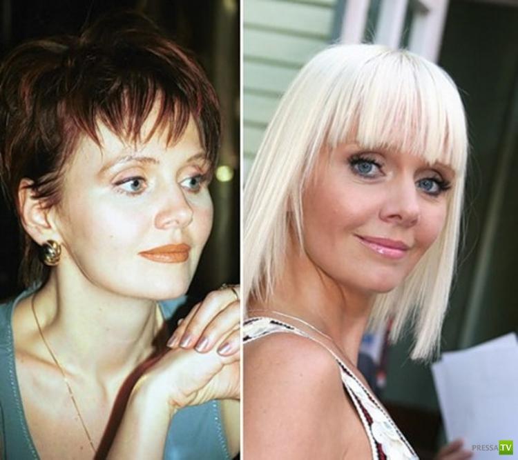 Худеющие звезды россии до и после фото участка составе
