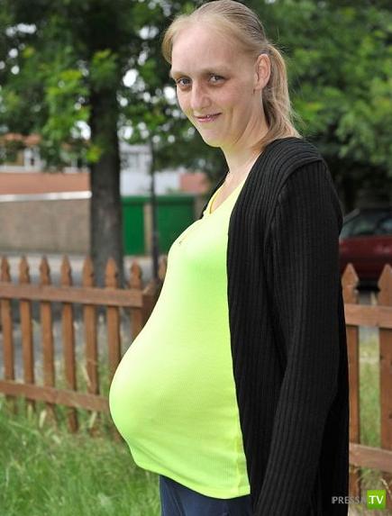 У беременной из живота торчит металлический штифт (2 фото)
