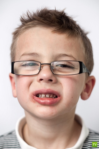 Дети до и после посещения стоматологического кабинета (8 фото)