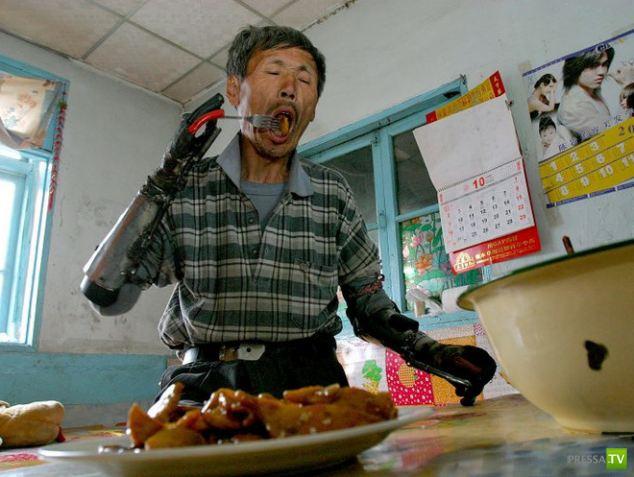 Протезы сделал сам - железный человек из Китая (5 фото)