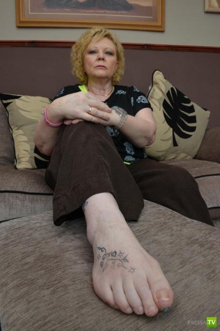 Шотландской туристке из-за тату чуть не отрезали ногу! (7 фото)