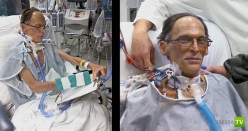 Самый первый человек без сердца и пульса (4 фото)