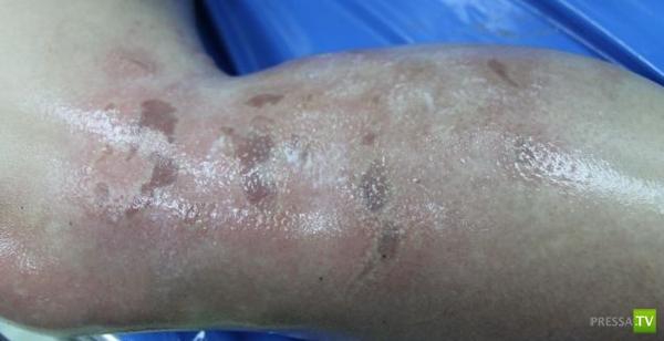 Медуза сожгла ногу британской туристке в Таиланде (5 фото)