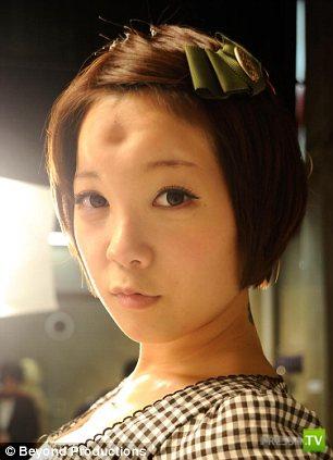 Идиотская мода на шишки на лбу в Японии (4 фото)