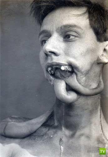 Самая первая в мире пластическая операция (9 фото)