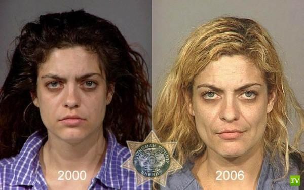 Люди, уничтоженные метамфетамином (21 фото)