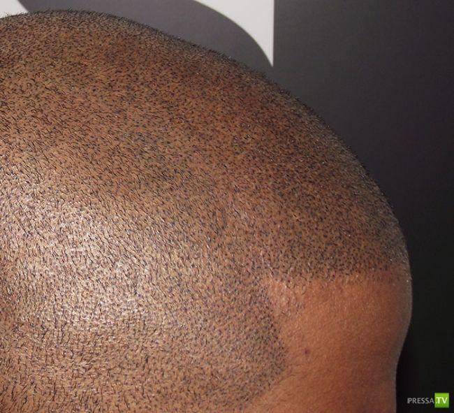 Как бороться с мужской лысиной? (8 фото)