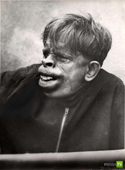 Человек-обезьяна, найденный в джунглях Бразилии в 1937 году (3 фото)