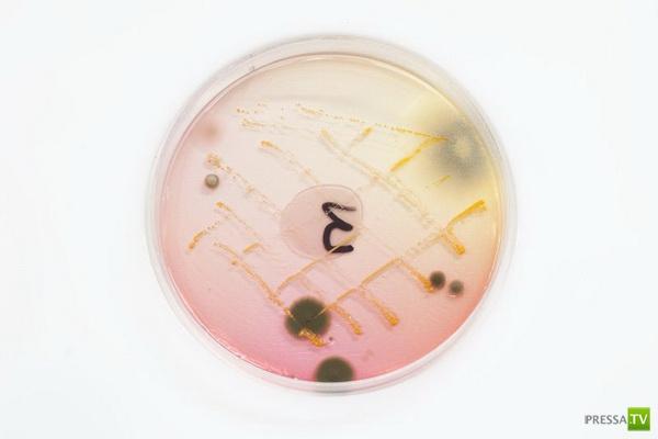 Осторожно!!! На деньгах живут бактерии (4 фото)