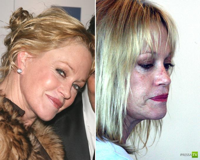Мелани Гриффит страдает из-за своей внешности (10 фото)