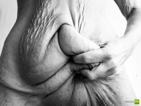 Последствия похудения на 50 килограмм. Жесть!!! (4 фото)