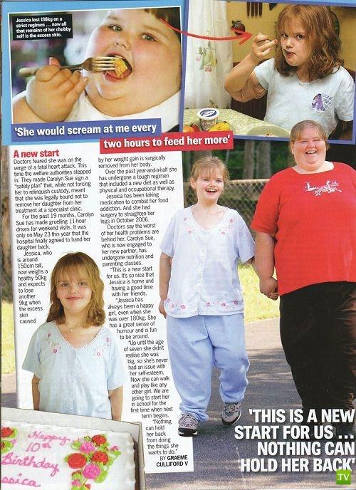 Джессика Леонард - самый толстый ребенок на планете (6 фото)