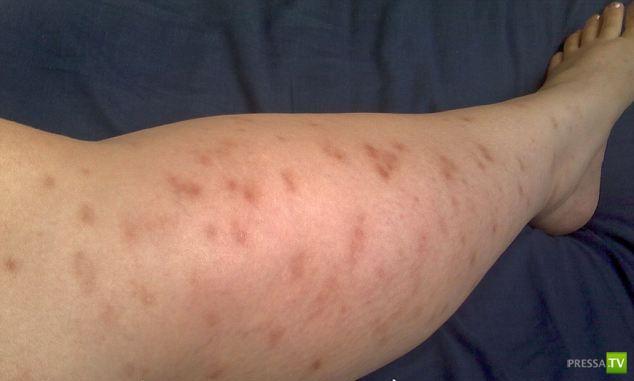 У матери аллергия на собственного ребенка (4 фото)