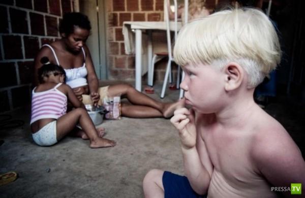 В семье темнокожих бразильцев родилось трое альбиносов (4 фото)